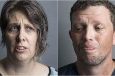 Ekspresi 12 orang pengidap penyakit mental, tatapannya penuh makna