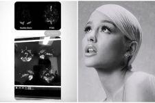 Mengenal penyakit PTSD, penyakit yang menyerang Ariana Grande