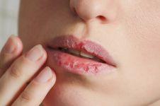 8 Cara mencegah bibir kering selama puasa, mudah & praktis