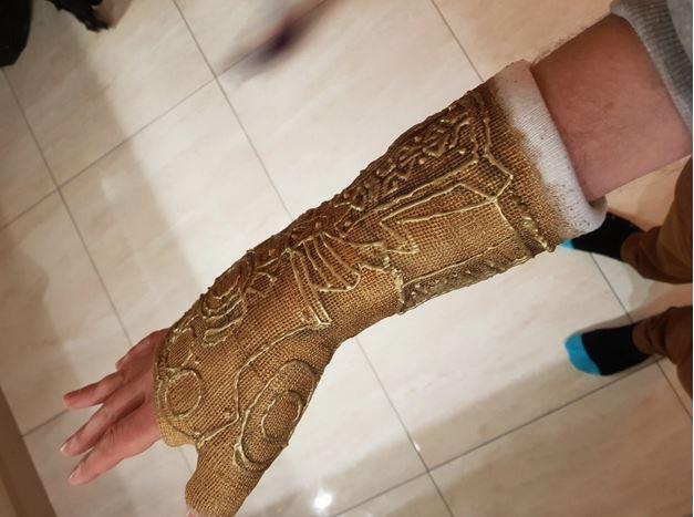 perban bak tangan Thanos istimewa
