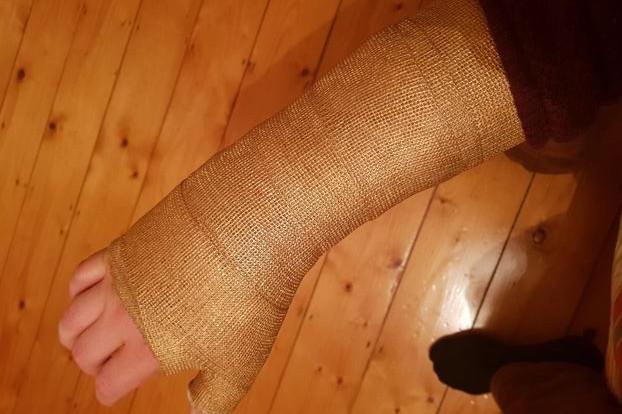 Pria patah tulang bikin perban bak tangan Thanos, ini 10 fotonya