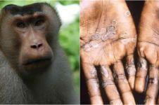 4 Beda penyakit cacar air dan cacar monyet, waspada ya