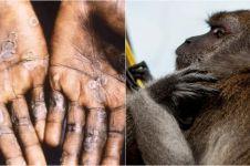 Kemenkes ungkap cacar monyet bisa sembuh tanpa pengobatan khusus