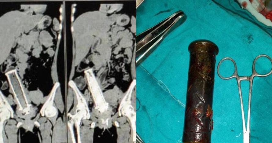 Akibat KDRT, stang motor tertinggal dua tahun di rahim wanita ini