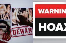 3 Fakta kabar hoax terkait cacar monyet, tetap waspada