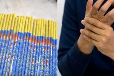 Main petasan, remaja 13 tahun ini kehilangan lima jarinya