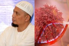 Mengenal penyakit kanker getah bening serta penyebab & gejalanya