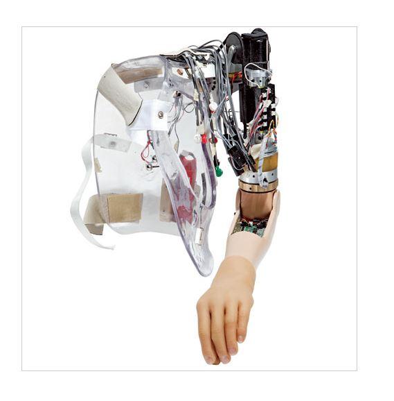 10 Teknologi pengganti organ tubuh © 2019 brilio.net