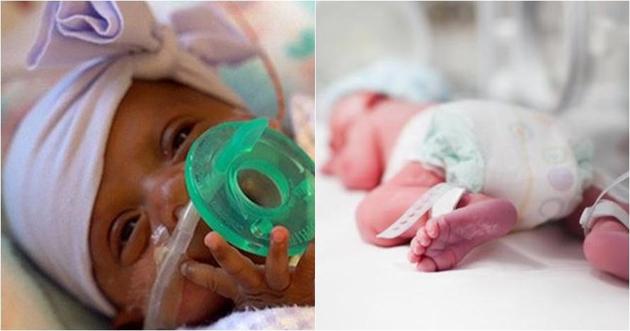 Bayi termungil lahir di dunia, beratnya setara dengan sebuah apel