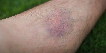 Ini penyebab kanker darah, kenali gejala dan cara pencegahannya