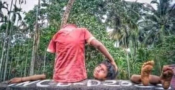 Viral foto bocah 'dimutilasi', triknya bikin tak habis pikir