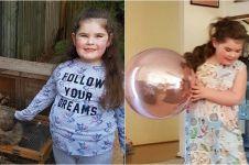 Kisah pilu bocah alami menopause di usia 7 tahun