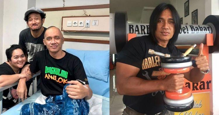 Agung Hercules sakit tumor, penampilannya kini berubah drastis