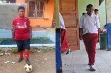 Bocah obesitas Arya Permana bakal jalani operasi plastik