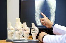 Sering nggak disadari, 7 kebiasaan ini memicu osteoporosis dini