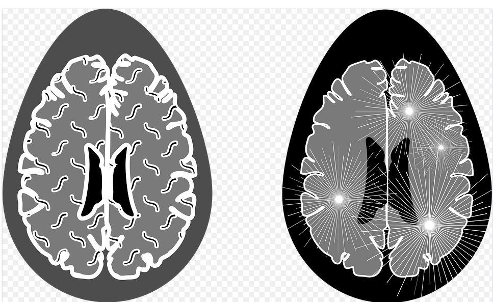 penyakit serius dari sakit kepala pixabay