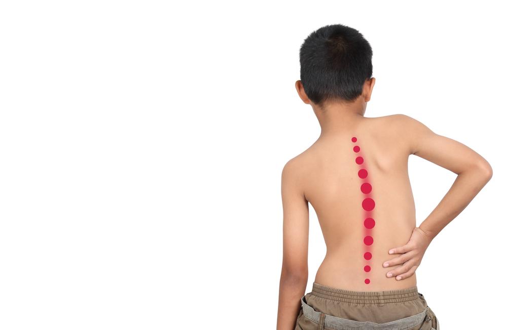 13 Penyakit mutasi genetik akibat inses, risiko sumbing & kerdil berbagai sumber