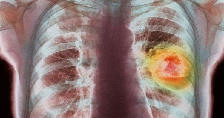 6 Penyebab kanker paru-paru, bukan cuma dari kebiasaan merokok