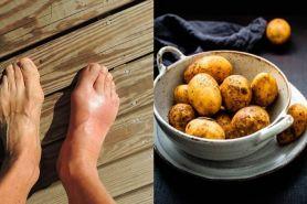 8 Sayuran turunkan asam urat, alami tanpa efek samping