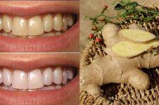 11 Bahan alami pemutih gigi, ampuh dan mudah didapat