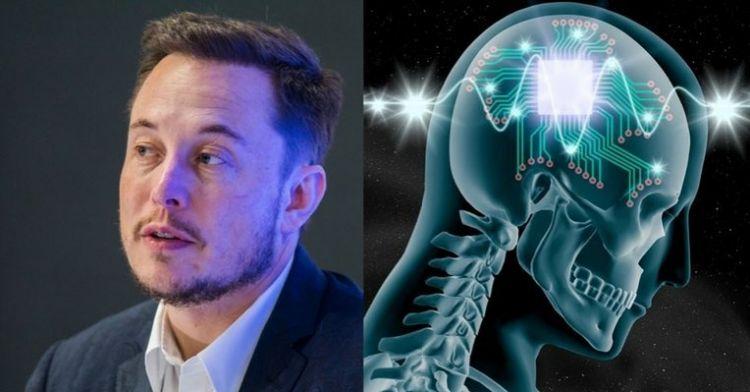 Elon Musk ungkap proyek tanam chip di otak manusia