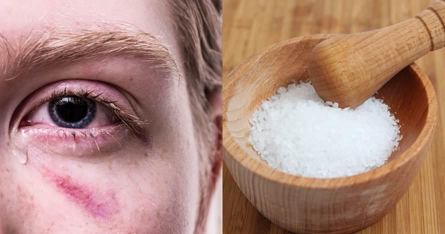 10 Cara cepat hilangkan mata bengkak karena menangis