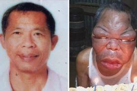 Awalnya sinusitis, wajah pria ini membengkak & tak bisa melihat