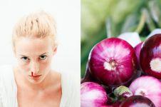 9 Cara menghentikan mimisan, mudah dan efektif