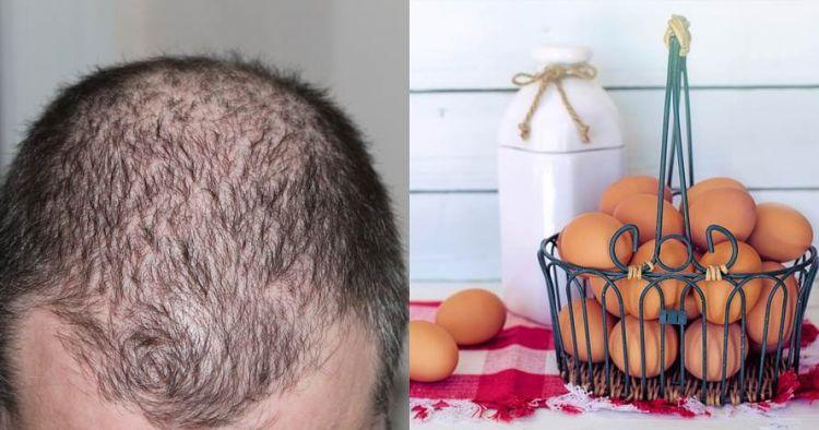 14 Makanan cegah rambut rontok, ampuh dan mudah didapat