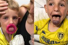 Bocah 6 tahun ini hampir kehilangan lidahnya karena lubang botol