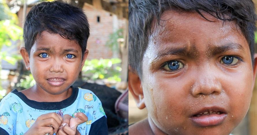 Viral bocah Sulawesi bermata biru, ini sosoknya