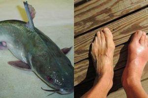 12 Manfaat ikan patin untuk kesehatan, bantu naikkan trombosit