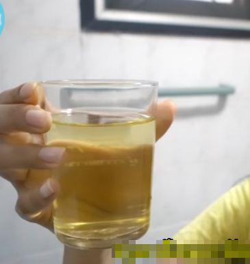 minum urin © 2019 brilio.net