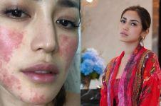 Muncul bercak merah di wajah, Jessica Iskandar ungkap penyebabnya