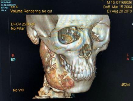 remaja sakit gigi ternyata tumor China Press