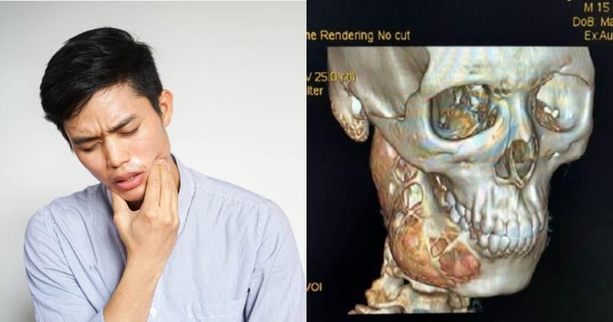 Sakit gigi setahun tak sembuh, remaja 15 tahun ini derita tumor