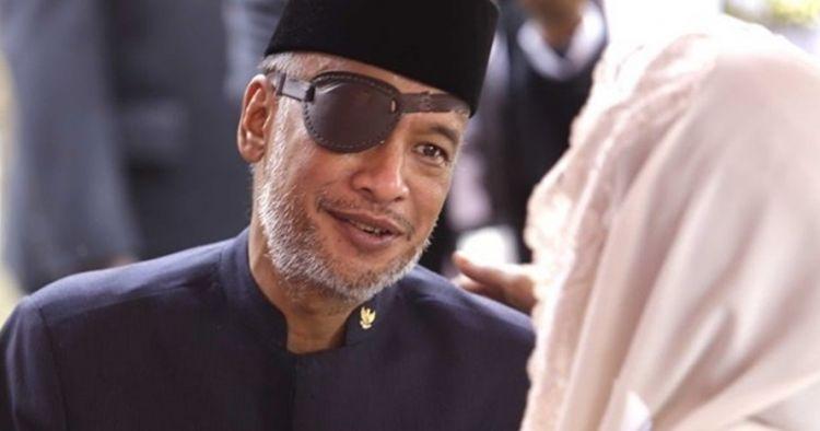 Gejala glaukoma penyakit mata yang diderita Thareq Kemal Habibie