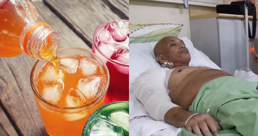 Minum soft drink setiap hari, lengan pria ini alami pembusukan
