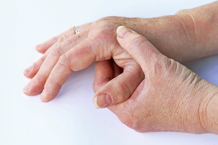 10 Perubahan dalam tubuh ini dapat mengungkap kondisi kesehatan © 2019 brilio.net
