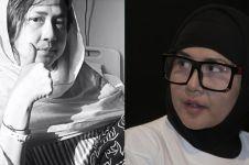 Tampil botak karena kanker kambuh lagi, Ria Irawan banjir dukungan