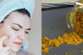 9 Cara menghilangkan jerawat dengan bahan dapur, ampuh dan cepat