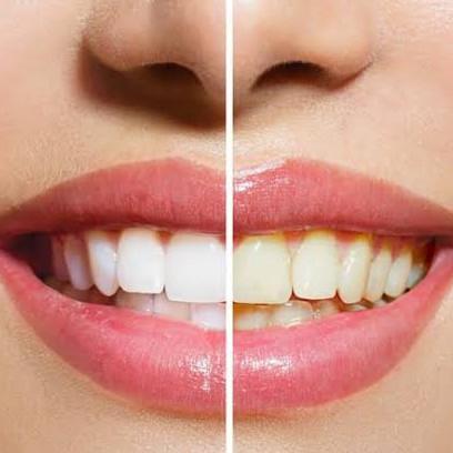 13 Cara alami memutihkan gigi, ampuh dan tanpa efek samping