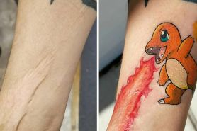 8 Bentuk bekas luka di kulit ini bikin melongo