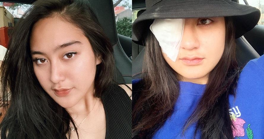 Kisah ngeri Salshabilla Adriani, nyaris buta karena softlens