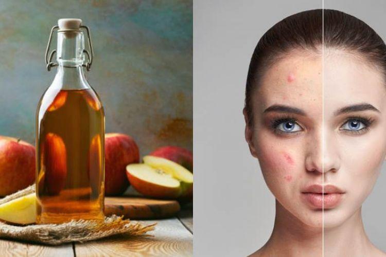 11 Manfaat Cuka Apel Untuk Wajah Dan Cara Penggunaannya