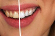 5 Cara menghilangkan karang gigi dengan buah-buahan, mudah dan ampuh