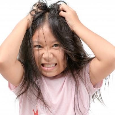 10 Penyebab rambut rontok pada anak dan cara mengatasinya