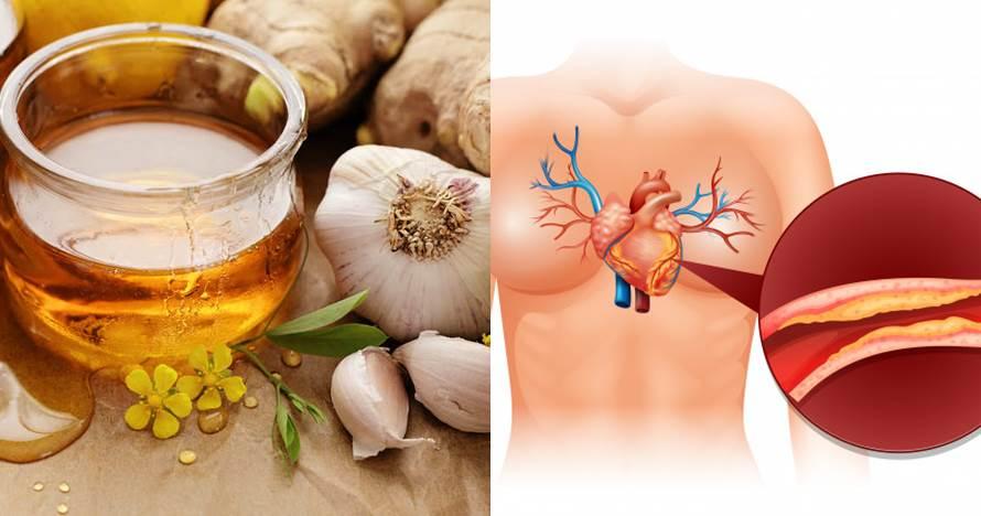 8 Manfaat bawang putih dan madu untuk tubuh & cara pakainya