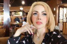 6 Perubahan wajah Barbie Kumalasari usai sulam alis, bibir, pipi