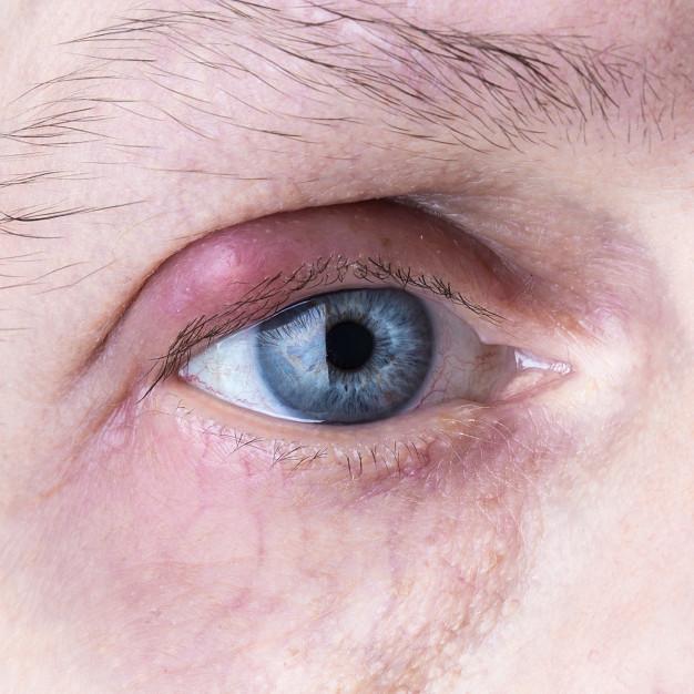 11 Jenis penyakit kulit dan cara alami mengatasinya freepik.com